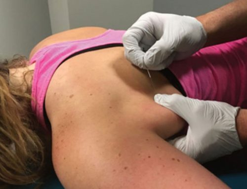 Dry Needling vs. Acupuncture